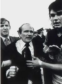 Graeme Richmond after brawl with Essendon Football Club, 1974